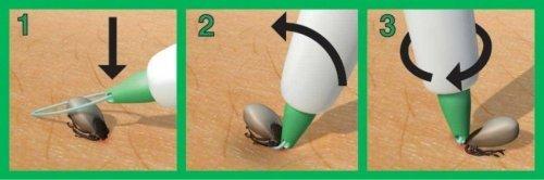 3ix Zeckenschlinge - zuverlässige Methode zur Zeckenentfernung